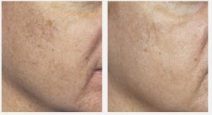 Post image for Laser Hair Removal: What Is Hypo and Hyperpigmentation?